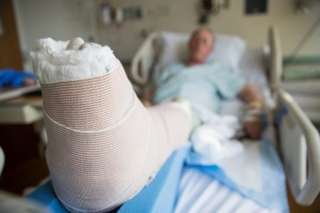 Patient's Bandaged Foot
