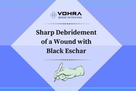 Debridement of a Wound with Black Eschar Slide