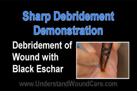 Sharp Debridement Demonstration