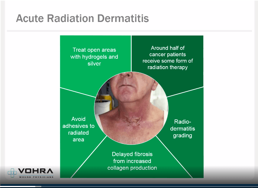 Atypical Wounds Acute Radiation Dermatitis Slide