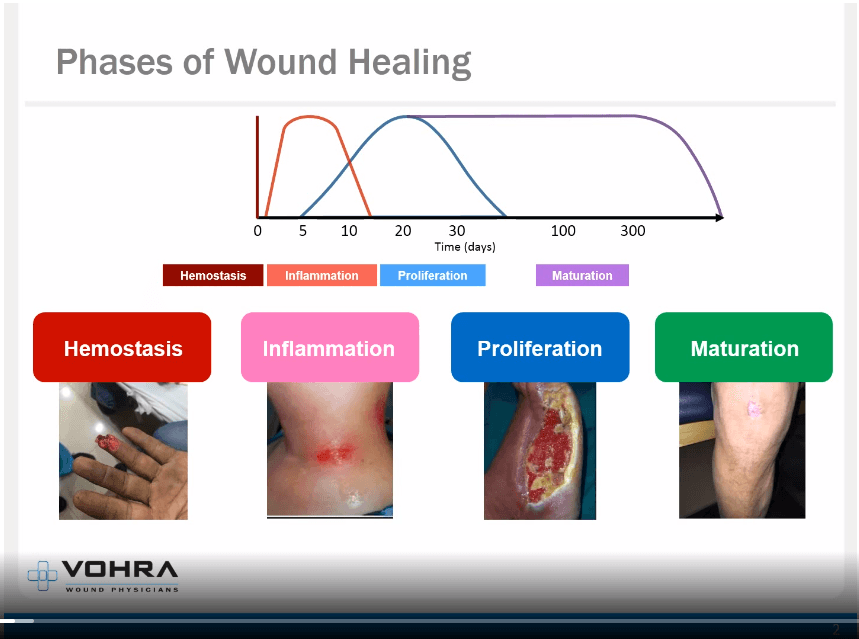 Phases of Wound Healing Slide