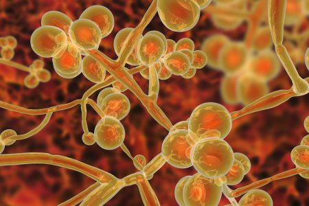 Candida Auris an Emerging Killer