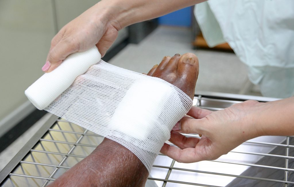 Nurse wrapping wounded foot
