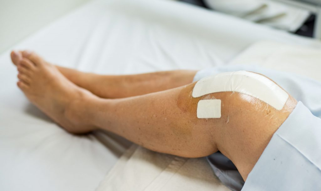 Bandaged patients with leg injuries
