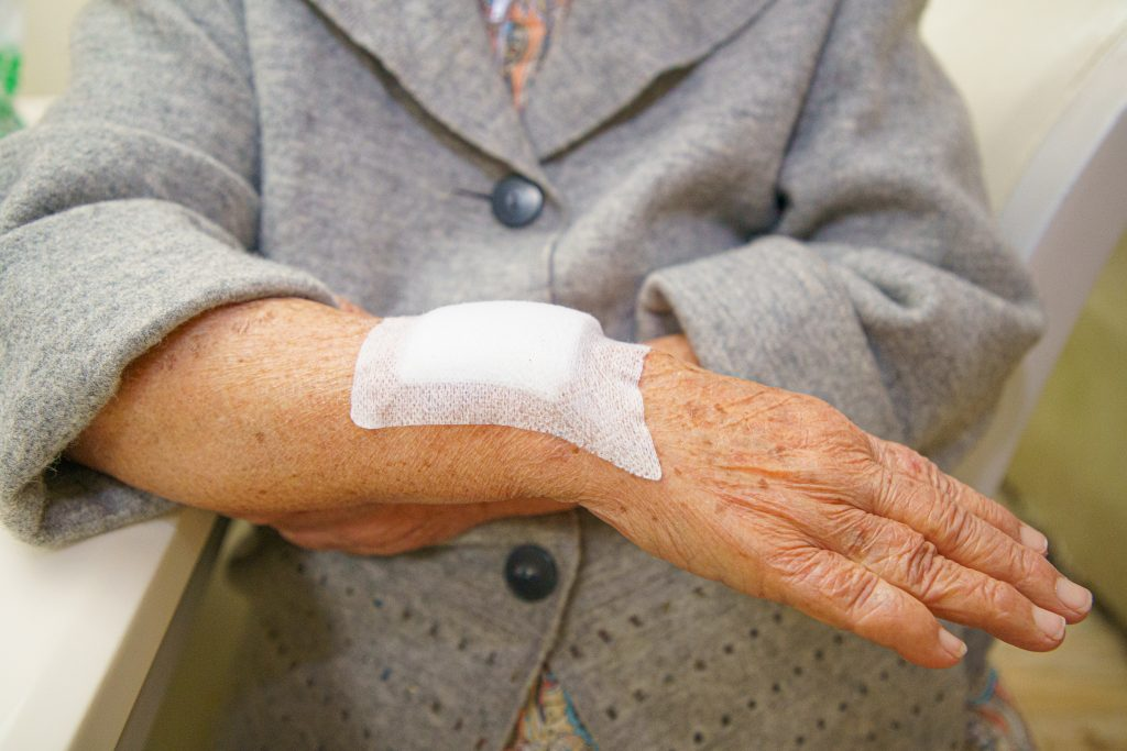 Women Arm Awaiting Wound Care Treatment