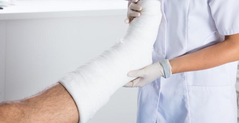 Nurse checking patient's plastered leg